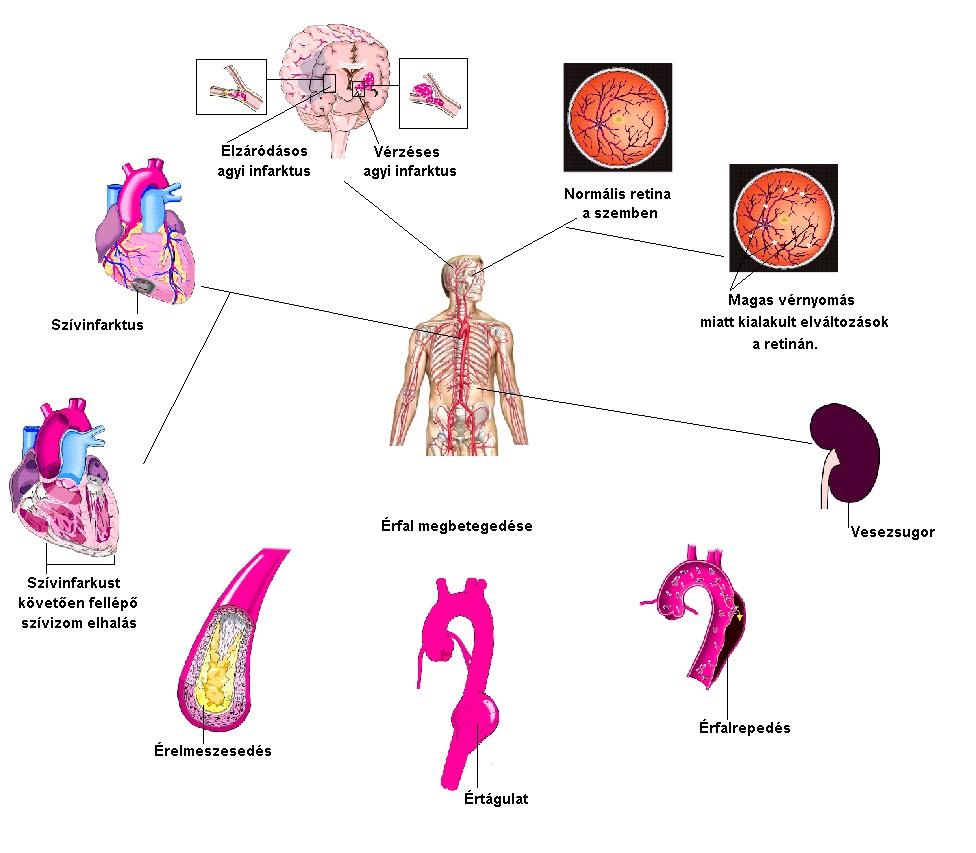 magas vérnyomás kemoterápia után