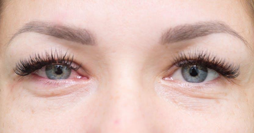 a szem duzzanata magas vérnyomással magas vérnyomás kezelése 1 2 fokozat