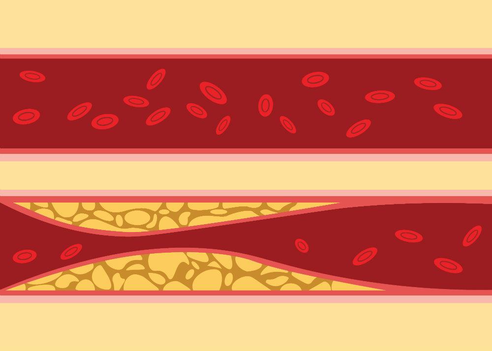 2 a magas vérnyomás egy szakasza magas vérnyomás alacsony pulzus