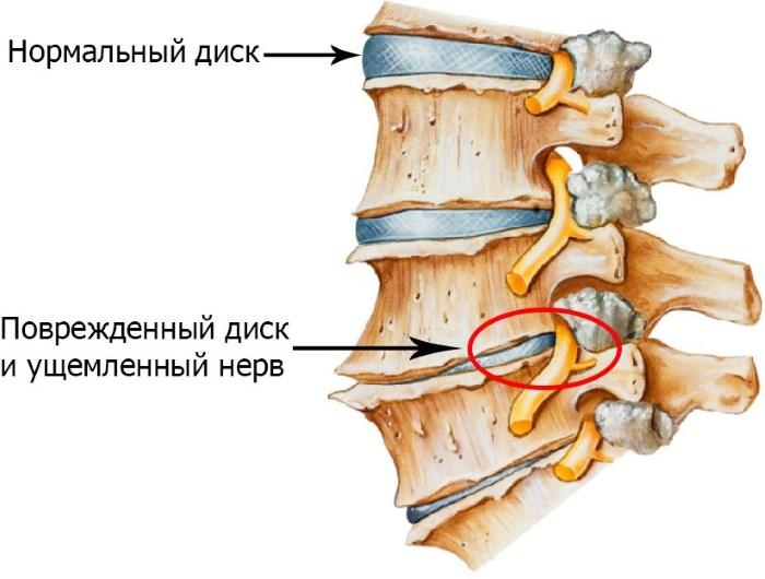 magas vérnyomás és nyaki csigolyák