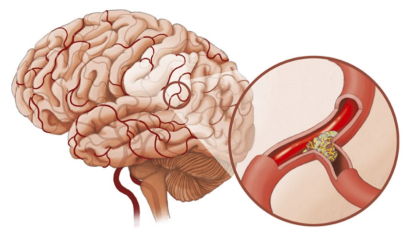 neuraszténikus hipertónia lehetséges-e szürkehályog-műtétet végezni magas vérnyomás esetén