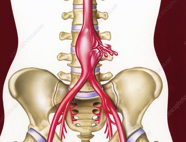 Coarctatio aortae - KardioKözpont