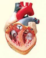 Egy tablettával az összes szívgond ellen? - HáziPatika