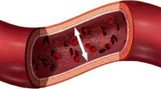 Magas vérnyomás és elhízás - Mit okozhat 10 kiló túlsúly?