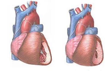 pontok a magas vérnyomás elleni masszázsért magas vérnyomás 3 fokos válságpálya