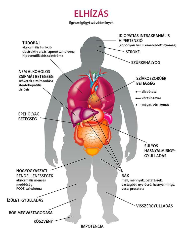 étrend magas vérnyomás és elhízás menü