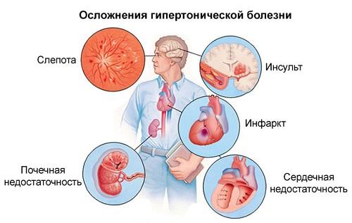 Magas vérnyomás 1,2 fok