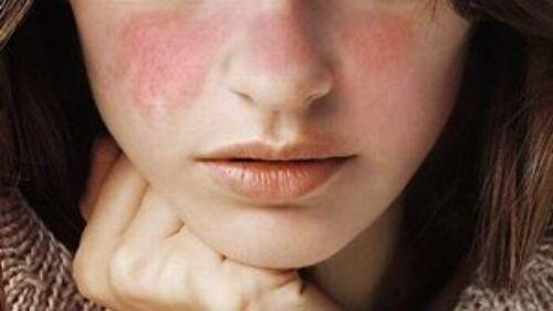 Szisztémás lupus erythematosus (SLE)