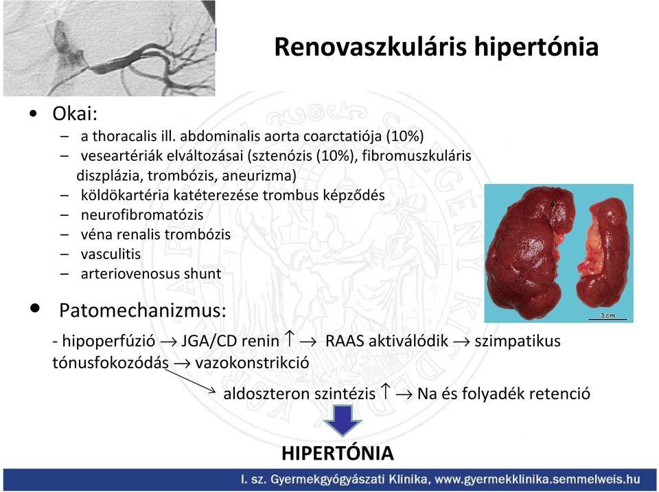 vaszkuláris átalakulás hipertóniában