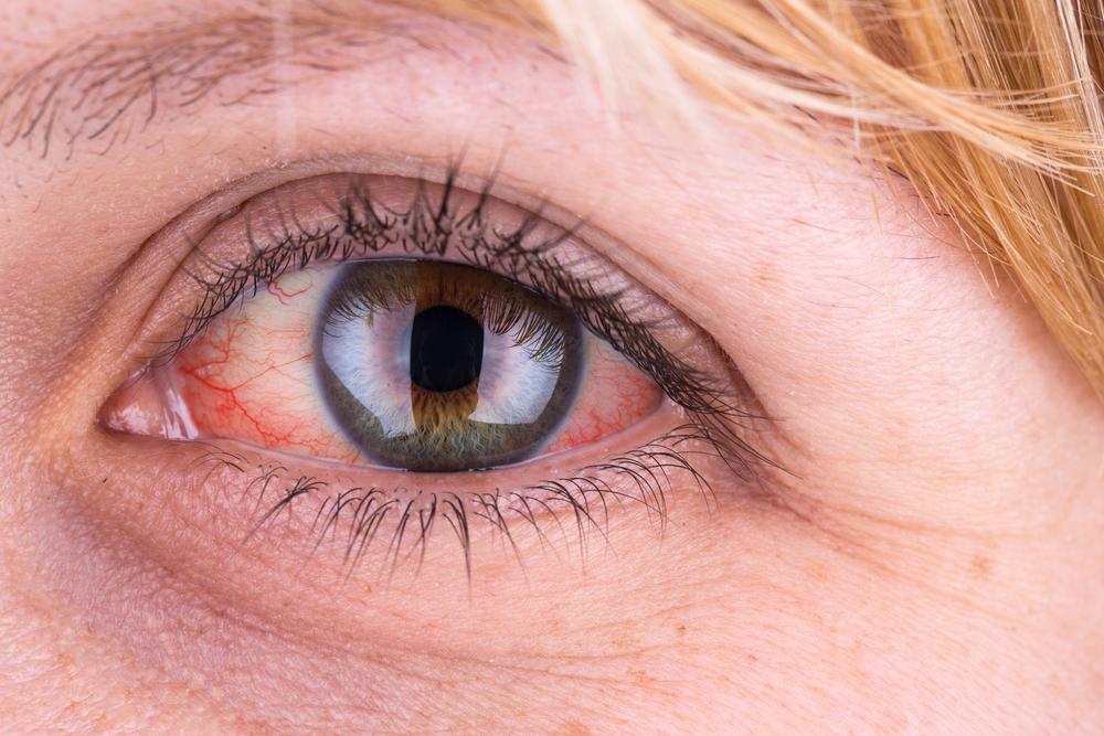 gyógyszerek magas vérnyomás kezelésére Németországból a magas vérnyomás olyan betegség amelyben