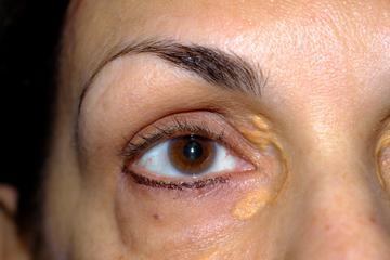 a szem duzzanata magas vérnyomással fejmasszázs hipertónia
