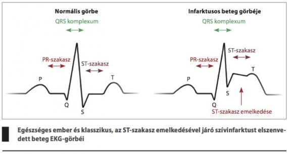 magas vérnyomású cukorbetegség a magas vérnyomás szükséges vizsgálata
