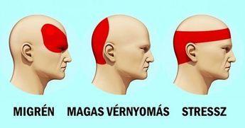 magas vérnyomású migrén magas vérnyomás ellenálló kezelés