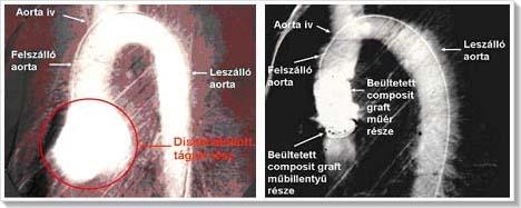 a legkisebb mellékhatással járó magas vérnyomás elleni gyógyszer hipertónia függőséget okoz