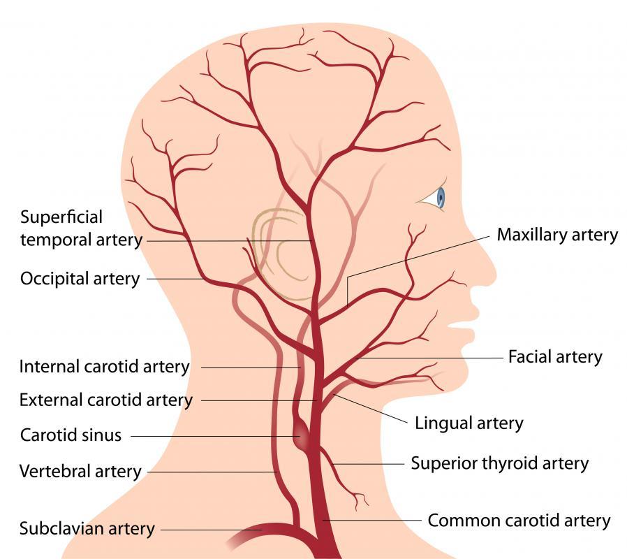 carotis arteria hypertonia milyen gyógyszereket szednek a magas vérnyomás kezelésére