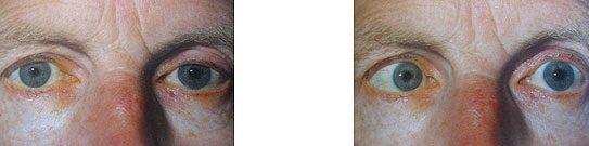 magas vérnyomás kettős látás