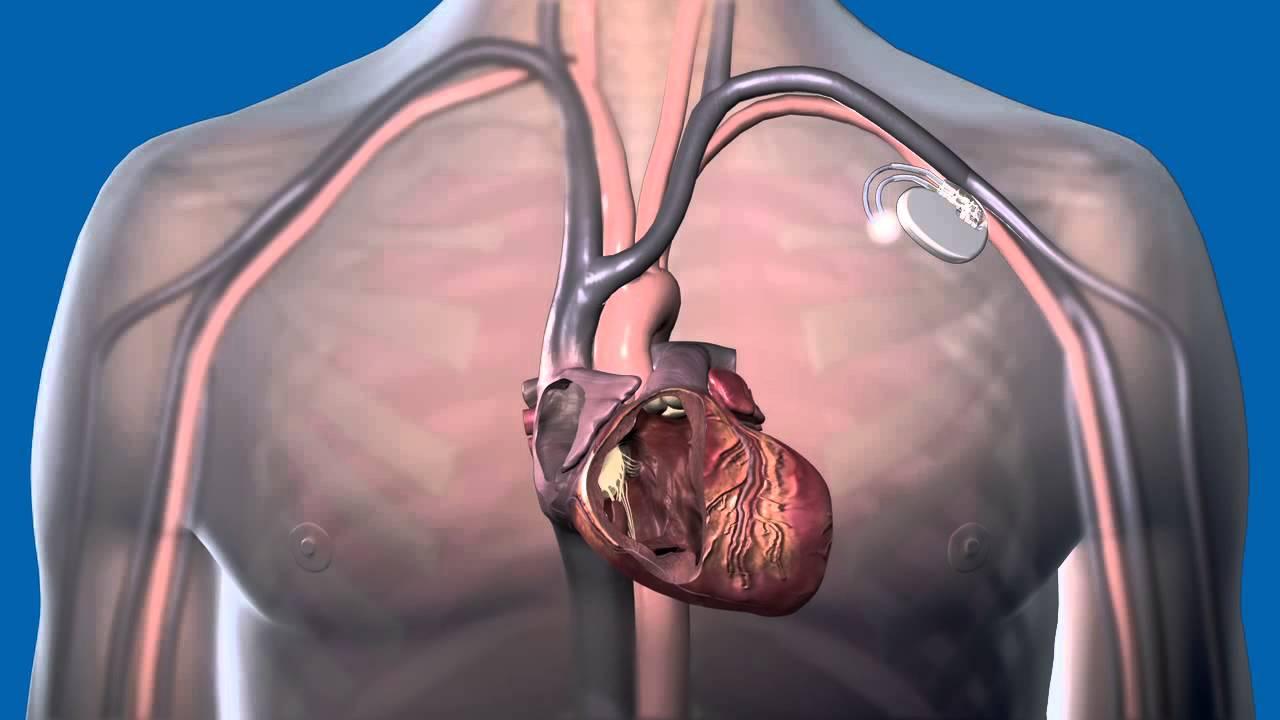 magas vérnyomás és pacemaker
