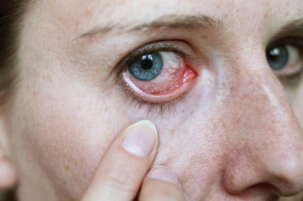 Magas vérnyomás-betegség – a néma gyilkos | Magánrendelés Budapest