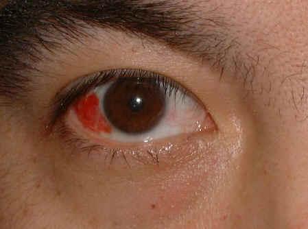 magas vérnyomás és a szem erek