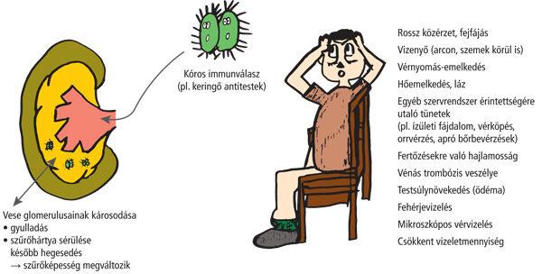 vese gyulladás hipertónia