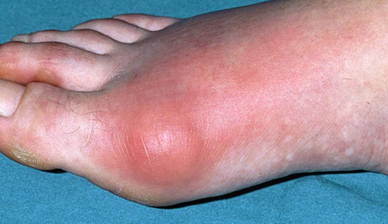 a lábak duzzanata a magas vérnyomástól hormonok szedése magas vérnyomás esetén