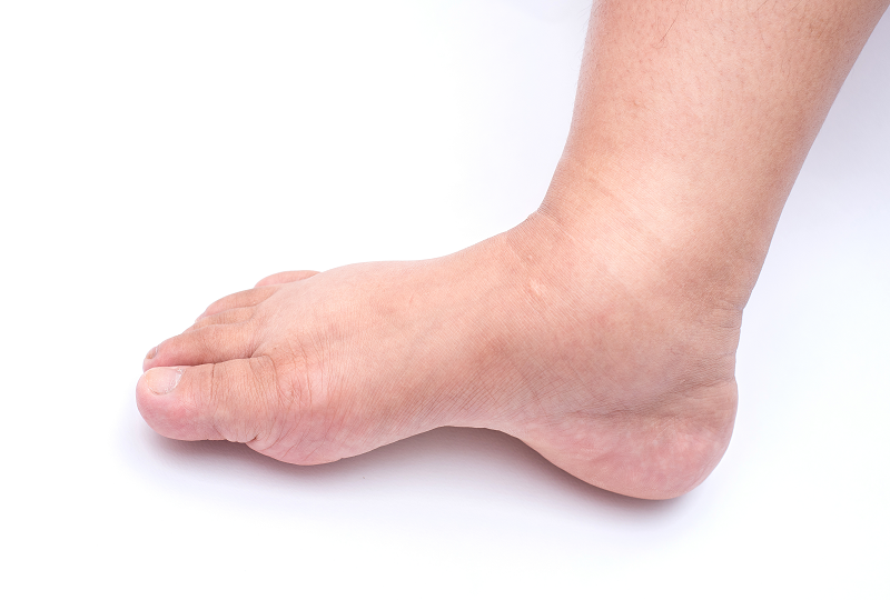 a lábak duzzanata a magas vérnyomástól krónikus mandulagyulladás és magas vérnyomás