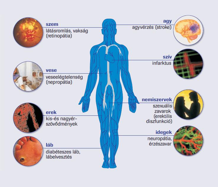 magas vérnyomás és 2-es típusú cukorbetegség egy hónap alatt kezeli a magas vérnyomást